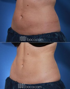 coolsculpting-belly-fat-reduction