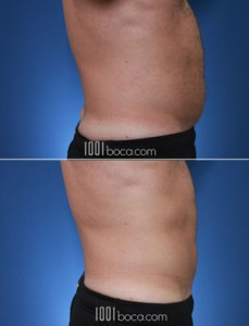 coolsculpting-man-belly-photo