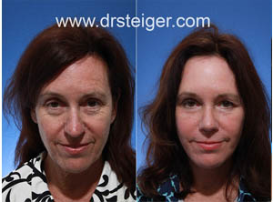 facelift with a nose job