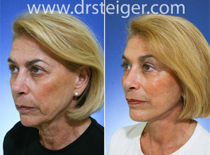 facelift before and after photos south florida