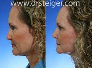 facelift and necklift photos