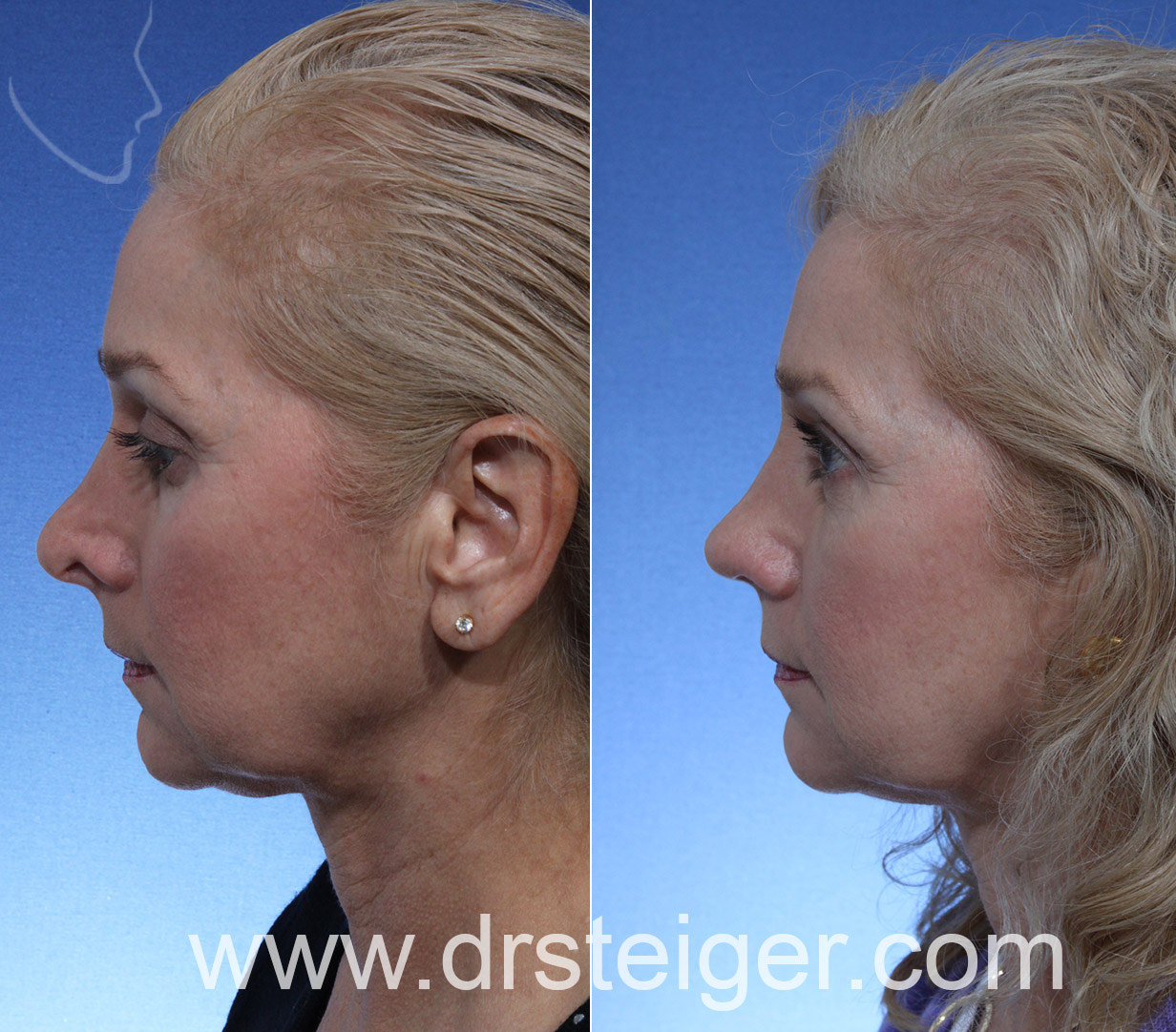 Revision Rhinoplasty for Alar Retraction