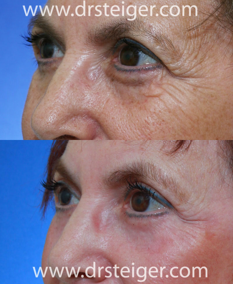 Fractional Co2 Laser Before And After Photos