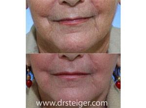 laser mouth wrinkles