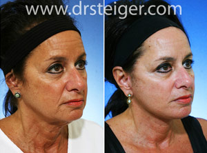 lower facelift jawline
