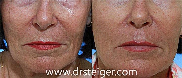 lip-augmentation-picture1_1