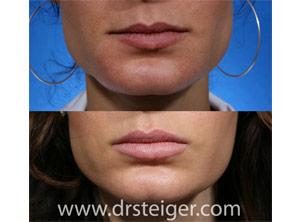 lip augmentation south florida