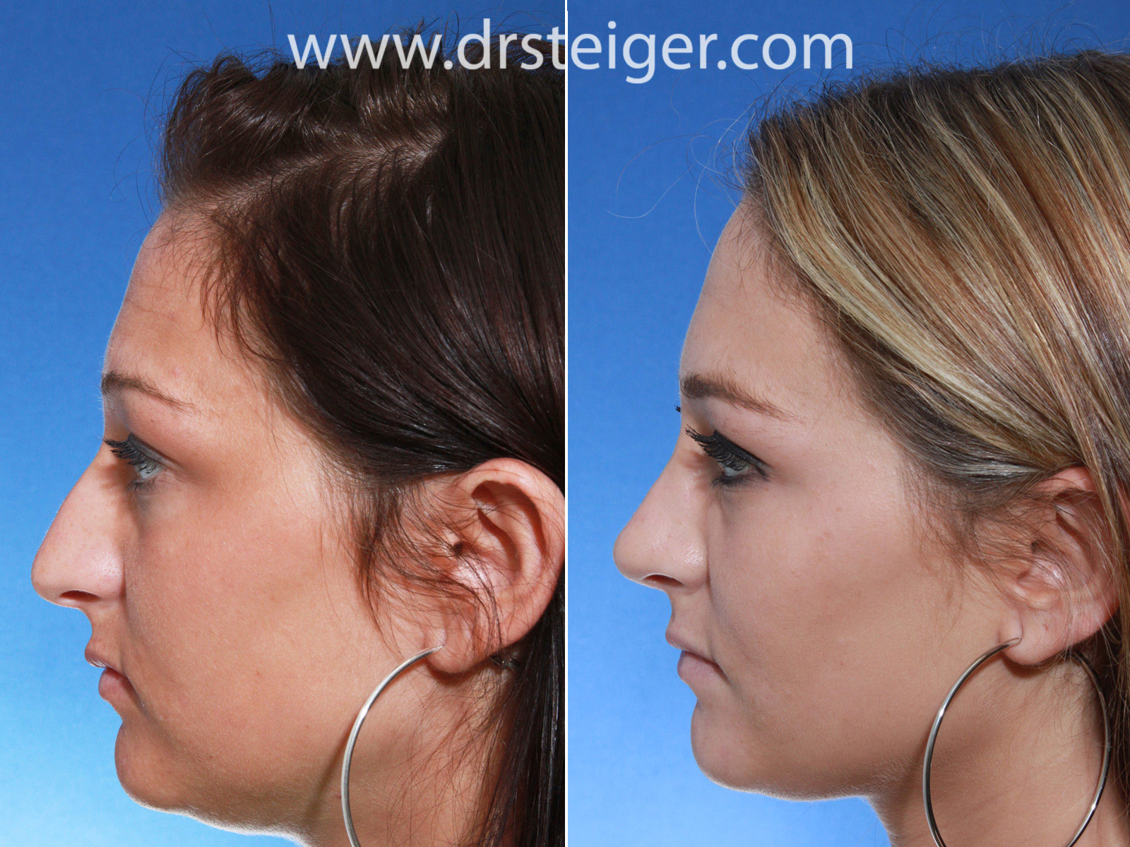 Rhinoplasty before and after wide nose