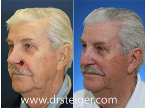nose mohs surgery photos