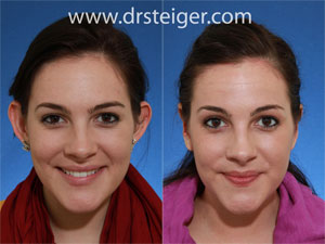 otoplasty before and after photos