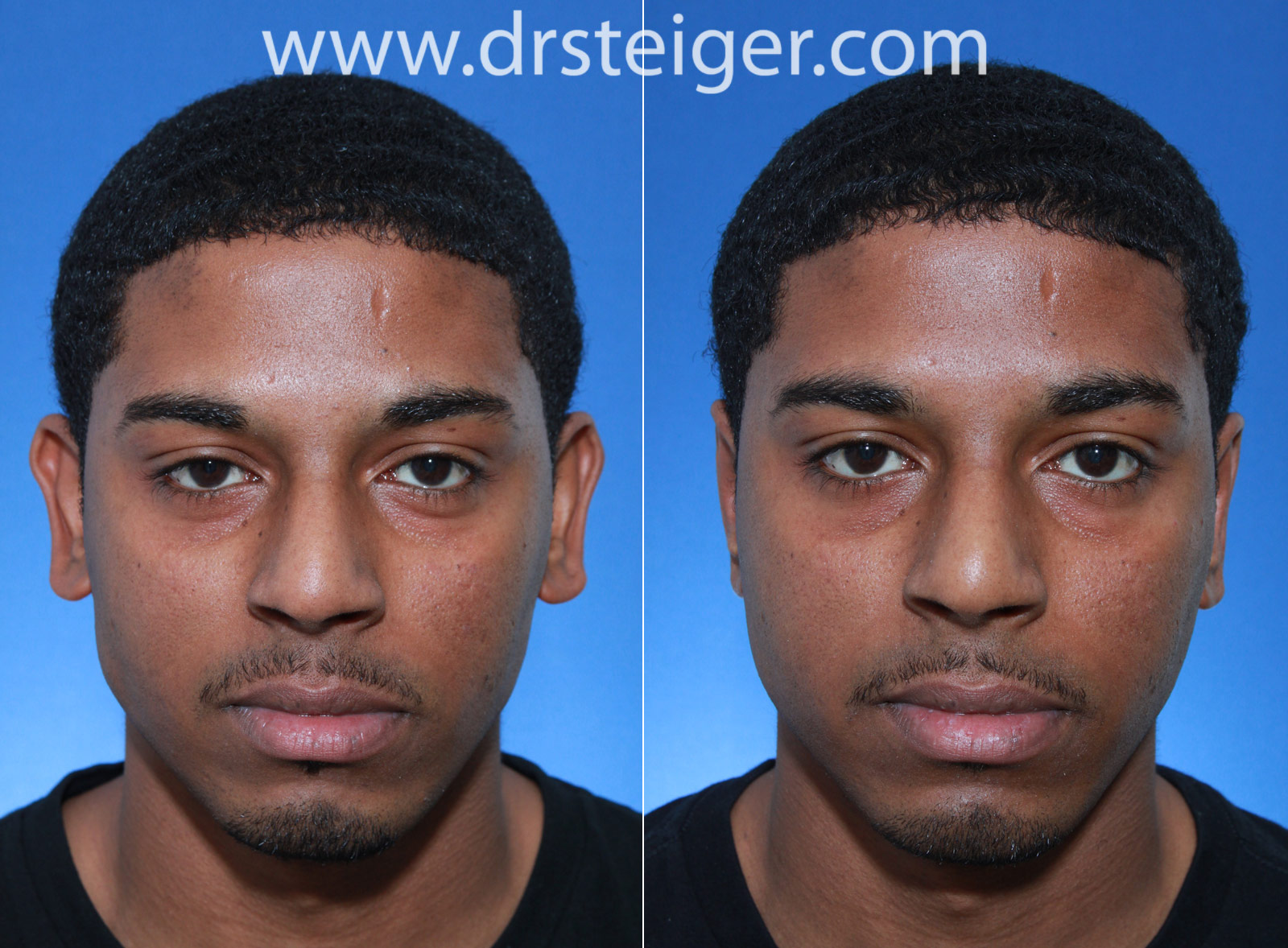 Otoplasty Before and After Photos | Ear Pinning Boca Raton