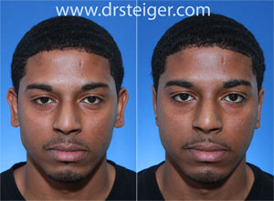 otoplasty in a black man