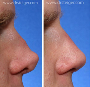 revisionnrhinoplasty after bad nose job