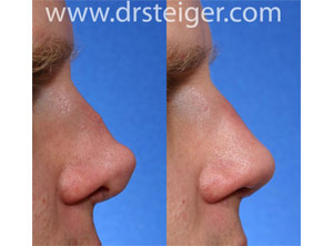 revision rhinoplasty after a bad nose job