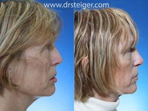 revision-rhinoplasty-nostril