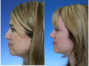 revision rhinoplasty pollybeak